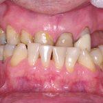 1-vista-inicial-intra-oral