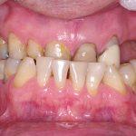 1-Vista inicial intra oral