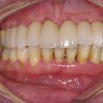 10-vista-intra-oral-final