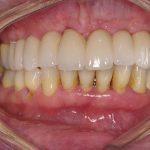 10-Vista intra oral final