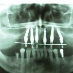 11Rx pos cirurgico do provisorio