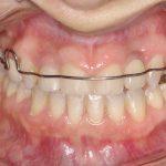 4Vista intra oral