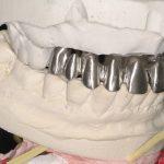 5-Infra estrutura metalica