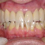 8-vista-final-da-reabilitacao-oral-finalizada