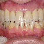 8-Vista final da Reabilitacao Oral finalizada