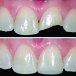 dentistica 03