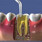 endodontia01